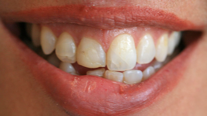 Before-Cosmetic dentistry crowns
