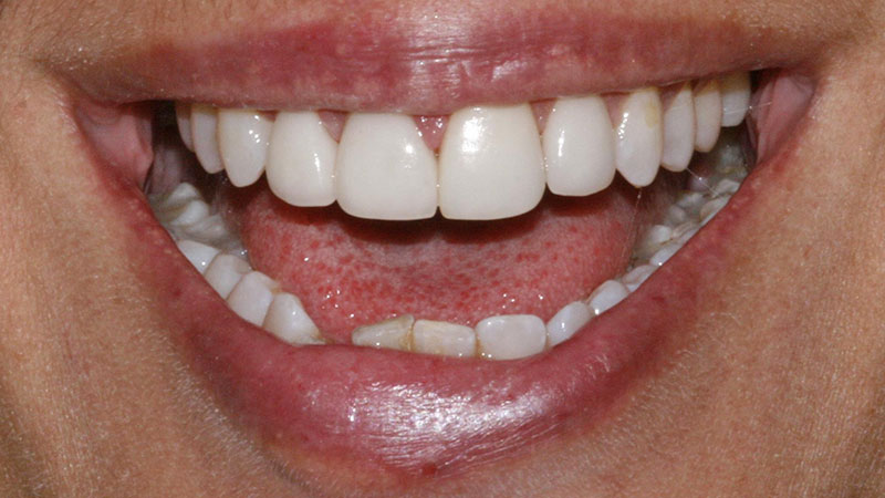 After-Cosmetic dentistry crowns