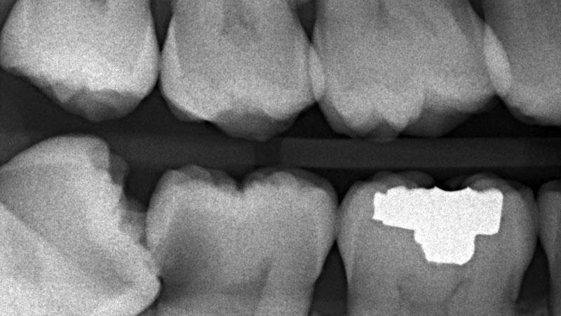 Wisdom teeth extraction in vancouver