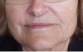 Before-4 days after Botox treatment for clenching/grinding