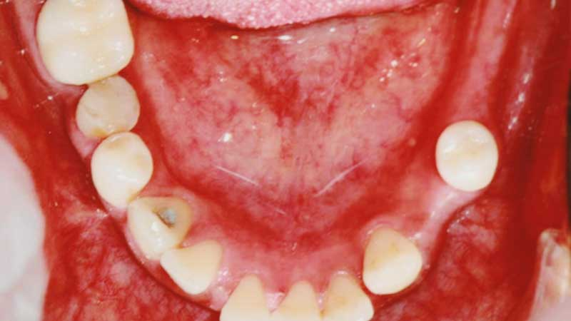Before-Dental implants bridges to restore function